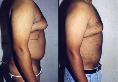 Men-liposuction-los-angeles